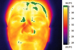 Infrared and visual image of man with an elevated body temperature. The colour alarm clearly shows parts of the head with a temperature higher than 38°C