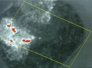 Infrared image showing hot spots in the waste. This means a danger of spontaneous self-combustion and fire.